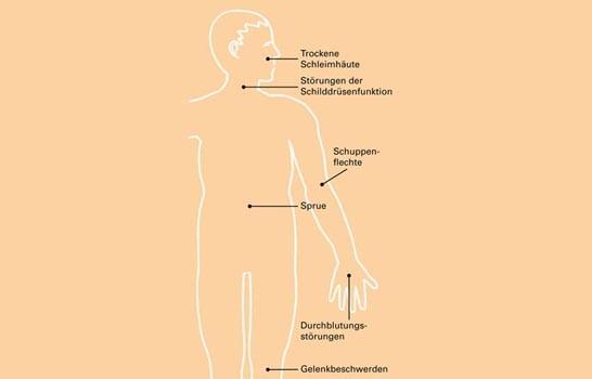 morbus crohn gewichtsverlust